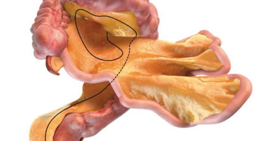 Neues Organ im menschlichen Körper entdeckt