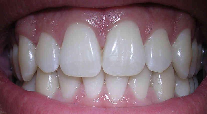 Gelber Zahn