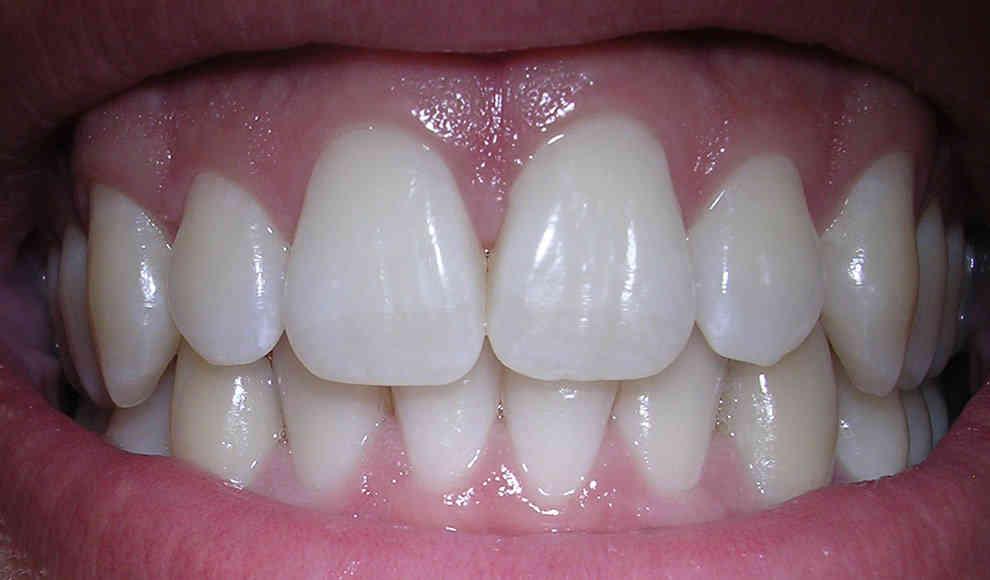 Graue verfärbung zahn Milchzahn verfärbt
