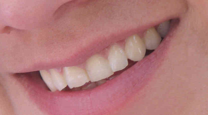 Neue Zähne wachsen aus Zellen